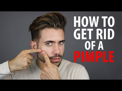 How To Get Rid of a Pimple Overnight | Fast Pimple and Acne Treatments | Alex Costa