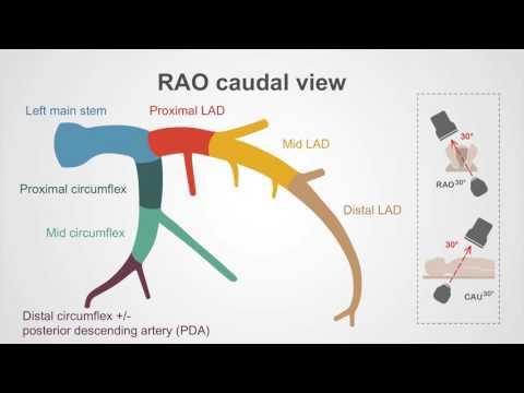The left coronary artery - A walk-through