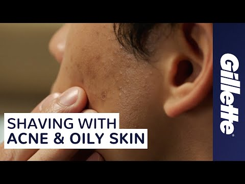 How to Shave with Acne and Oily Skin | Men's Skin Care Tips