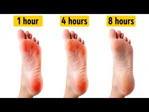 How to Get Rid of Calluses on Feet Overnight ¦ You Must Try This Extremely Effective Method!