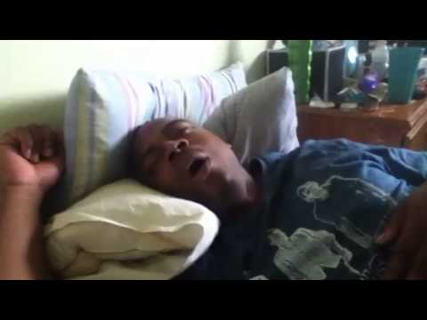 Severe snoring.