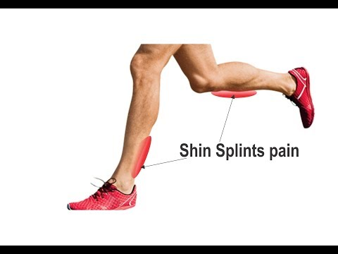 Shin Splints Prevention Exercises