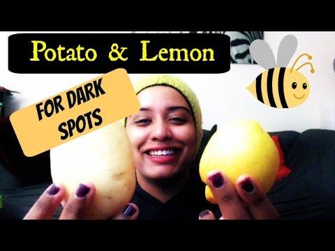 Fade Away Dark Spots With A Potato & A Lemon