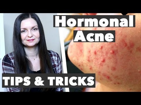 How to Get Rid of Hormonal Acne - Best Remedy for Premenstrual Breakouts - Cure Hormonal Acne