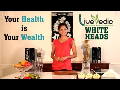 DIY: Get Rid of Whiteheads with Natural Home Remedies | LIVE VEDIC