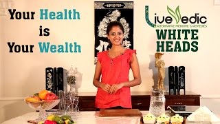 Diy Get Rid Of Whiteheads With Natural Home Remedies Live Vedic