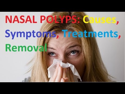 What are Nasal Polyps? Causes Symptoms Treatment and the Best Removal  Home Remedies