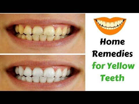 Yellow  Teeth  Baking Soda Teeth Whitening |  Home  Remedies To Whiten Teeth Instantly
