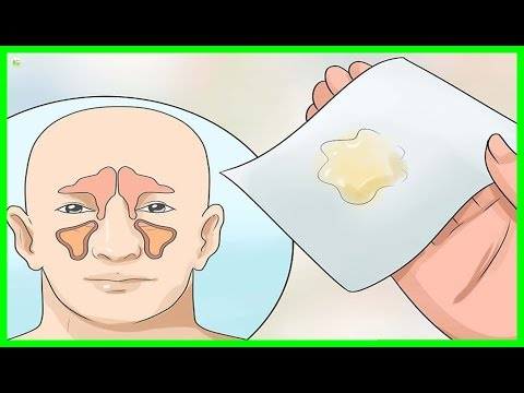 How To Get Rid Of Phlegm And Mucus In Chest And Throat Instantly - Best Home Remedies