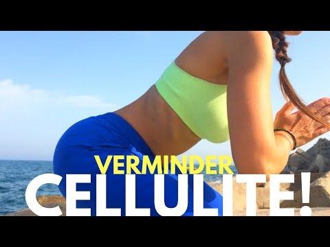 De Ultieme Workout om Cellulite te Verminderen Benen Oefening