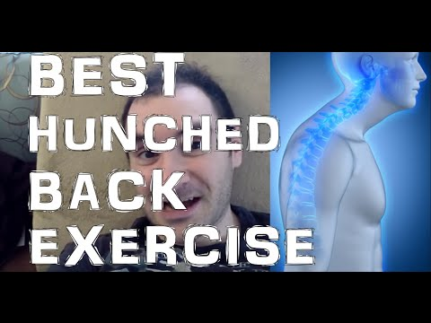 BEST Exercise To Fix Hunched Back Kyphotic Posture!