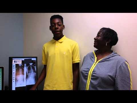 Jarrian, 15 yo with adolescent idiopathic scoliosis doing well, and standing up straight!