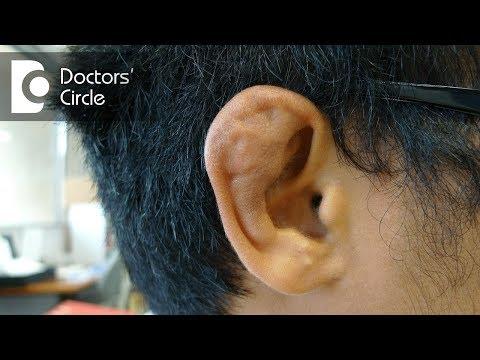 What is Cauliflower ear and its management? - Dr. Sreenivasa Murthy T M