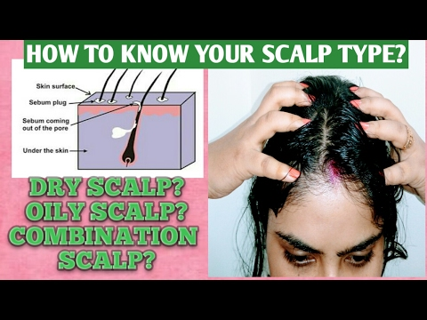 HOW TO KNOW YOUR SCALP TYPE? OILY, DRY & COMBINATION SCALP