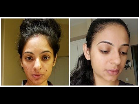 DIY THE BEST All Natural Sea Salt/Lemon Scrub for acne/dry skin/scars