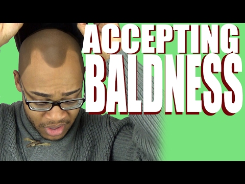Accepting Your Baldness