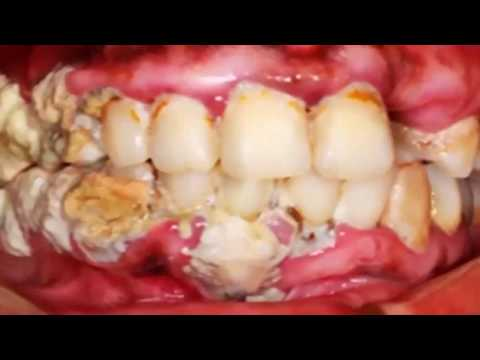 Extreme Dental Plaque Removal; What is Plaque?