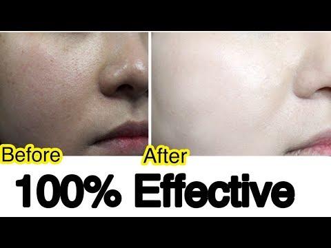 Skin Whitening Serum For Glowing Milky White Skin   Summer Skin Care   JSuper Kaur