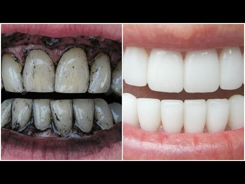 How To Whiten Teeth Instantly at Home with Charcoal! │Get White Teeth Naturally in 3 Minutes 100%