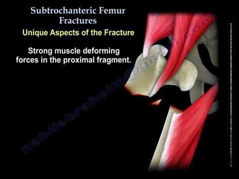 Subtrochanteric Femur Fractures - Everything You Need To Know - Dr. Nabil Ebraheim