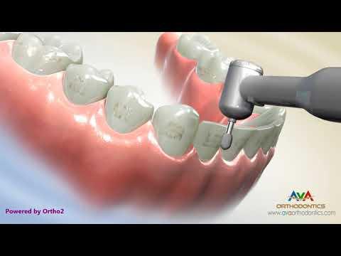 Taking Braces Off - Orthodontic Treatment