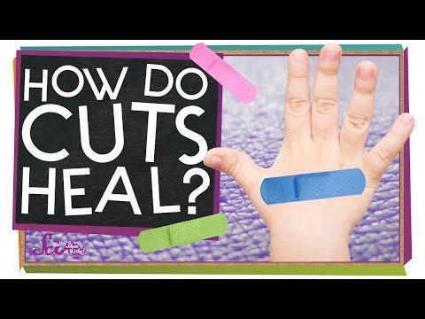 How Do Cuts Heal?
