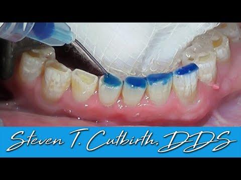 Bonding Worn Anterior Teeth - Dental Minute with Dr  Steven T. Cutbirth, DDS