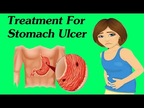 Best Way To Get Rid Of Stomach Ulcer Permanently - Best Home Remedies For Peptic Ulcer