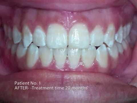Invisalign Before and After Pictures V2 - Toronto Invisalign with MCO Orthodontics