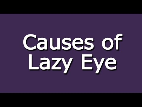 Causes of Lazy Eye