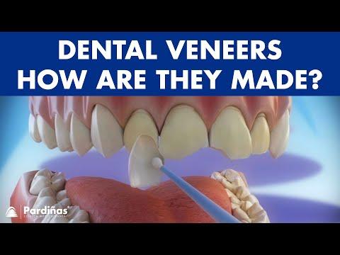 Veeners - Preparation and placement of dental veneers ©