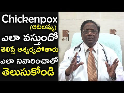 How do Chickenpox Effects and Easy Chickenpox Healing Tips (ఆటలమ్మ,అమ్మవారు,సన్నజాజులు)