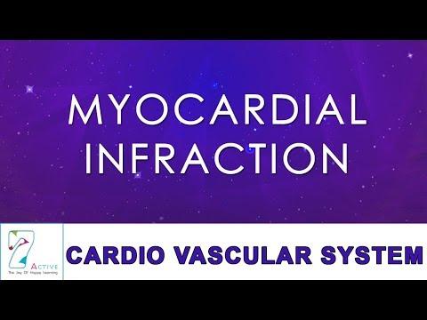 MYOCARDIAL INFRACTION