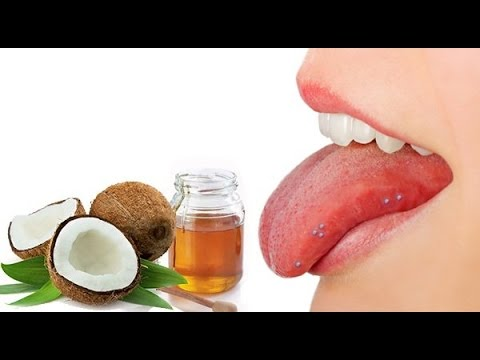 Top 5 Home Remedies To Cure Blisters On Tongue