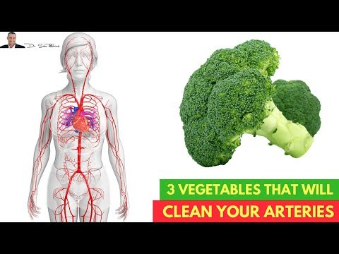 🌿3 Vegetables Clinically Proven To Cleanse Your Arteries💗