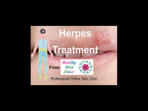 Herpes treatment and the Healthy Skin Clinic