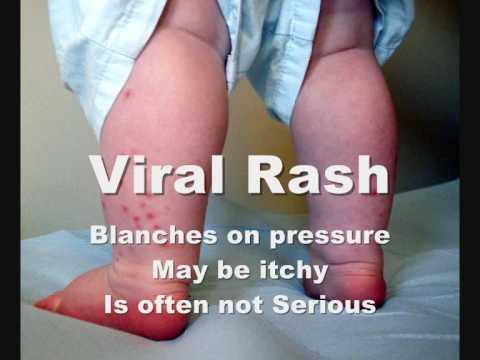 How To Check Meningitis Rash