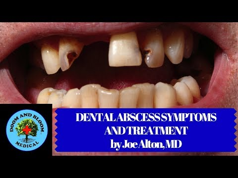 Dental Abscess Symptoms and Treatment in Survival