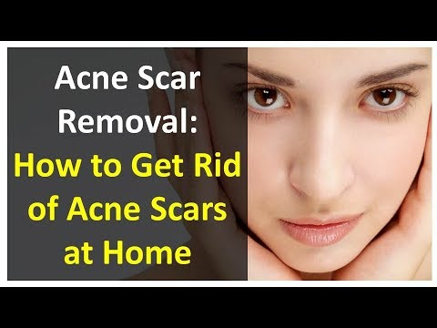 Acne Scar Removal | How to Get Rid of Acne Scars at Home