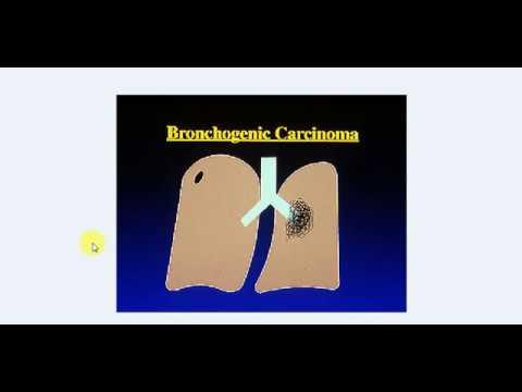 MEDICINE Lectures , Respiratory , TP 16 , BRONCHOGENIC CARCINOMA