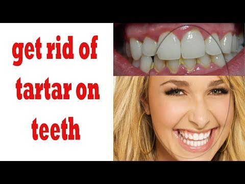 how to get rid of tartar on teeth || how to remove plaque from teeth