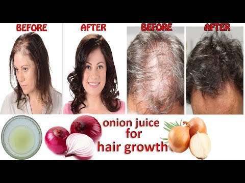 Onion juice for hair regrowth before and after   Fast Hair Regrowth, Hair Loss