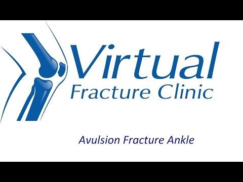 Avulsion fracture to ankle