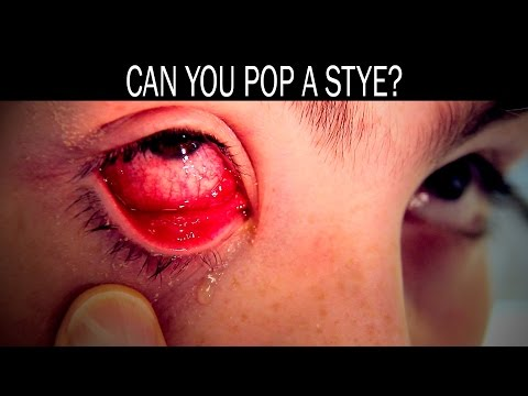 What happens if you squeeze a stye