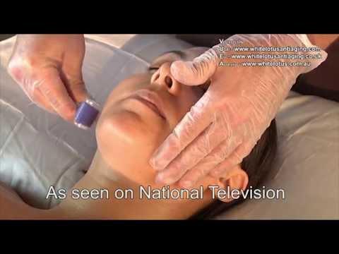 Holistic Microneedling Natural Skin Needling by White Lotus Anti Aging