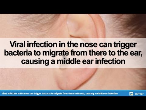 Viral infection in the nose can trigger bacteria to migrate from there to the ear, causing a middle