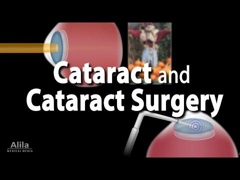 Cataract and Cataract Surgery Animation.