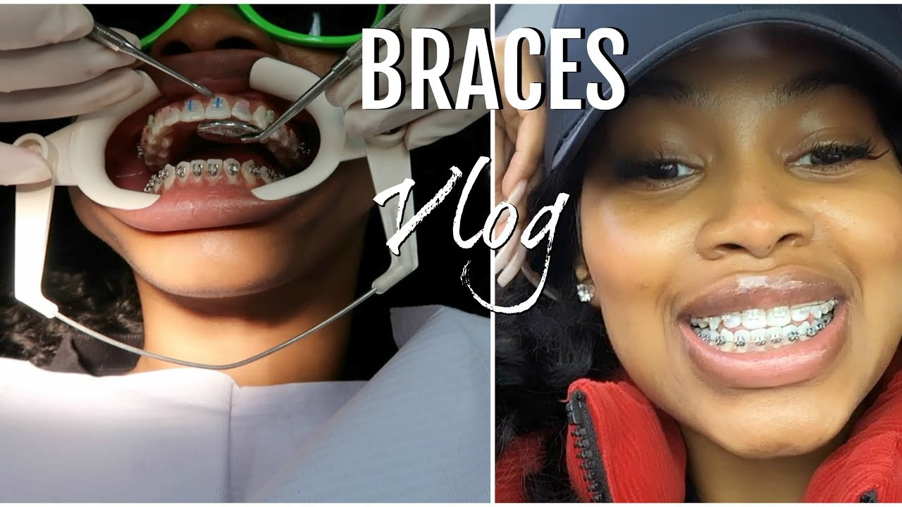 COME WITH ME TO GET BRACES! PAIN LEVEL & COPING WITH THEM THE FIRST FEW DAYS