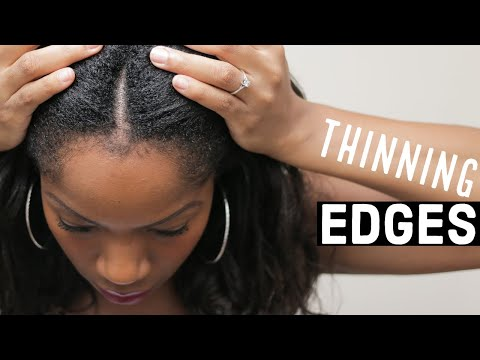 Growing Back THINNING EDGES (5 SIMPLE TIPS)