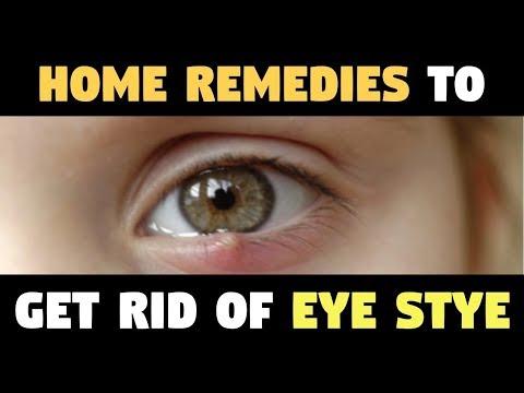 EYE STYE | Why Leave STYES EYE – HOME REMEDIES To Get Rid Of Eye Stye!!